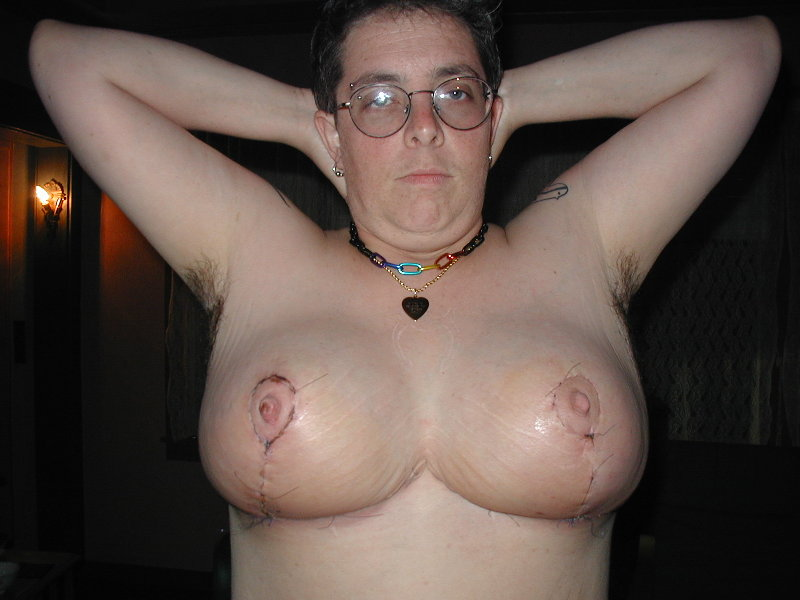 guy with tits